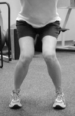 Valgus Collapse