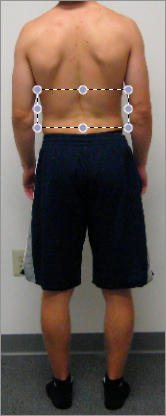 PEC Posture