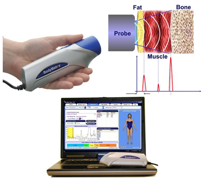 Body Metrix Analysis