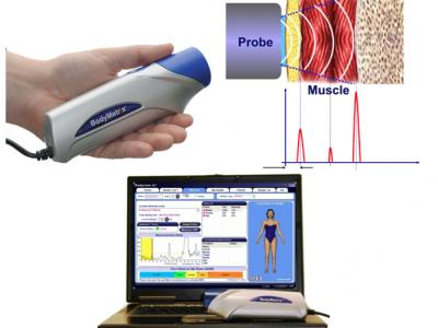 Ultrasound Body Composition System